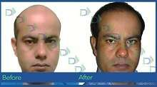 #HairTransplant in #Delhi by internationally certified hair transplant surgeon, Dr Gaurav Garg. Get hair transplant with latest FUE technique.