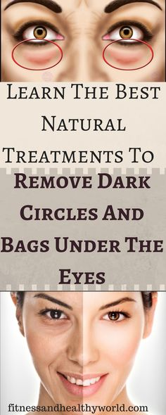 #natural #treatment #dark #circles #bags #eyes #beauty