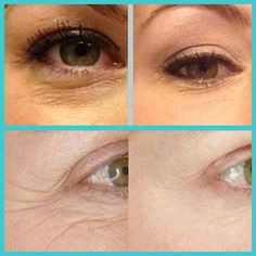 Before and after of the Rodan and Fields Multi-function eye cream. One of my many favorite products!kmccammitt.myrandf.com