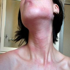 It includes the awareness of one's trigger. It can be difficult measure as the triggers are multiple and so are the different types of urticaria. The people have more than one type. The symptoms are not known and there is not any clear trigger for it. If we can identify one trigger it can be...