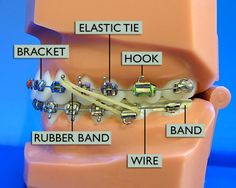 When undergoing braces, we often think, how do braces work or how the braces move the teeth. Basically teeth movement happens due to wires in the brackets. the wires apply force and pull the teeth to t Dental Braces, Teeth Braces, Dental Care, Dental Hygiene, Braces Tips, Braces Cost, Cute Braces Colors, Getting Braces, Invisible Braces