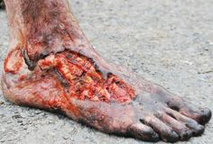 Foot injury prosthetic from Game of Thrones by Creatures Inc, LTD SFX…
