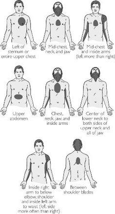 Cushing's vs Addison's vs Graves vs Hypothyroidism