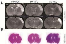El uso de células madre ayuda a recuperar el cerebro tras un ictus isquémico