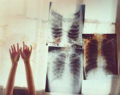 ribcage.