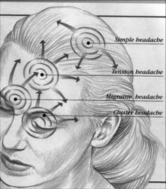 Headaches-Stress-Tension Headaches-Relief For Headaches- head-back- types- causes