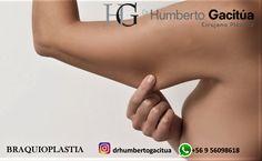 estendenciaensantiagodechile.blogspot.com  Dr. Humberto Gacitúa Garstman #CirugíaPlástica: Estiramiento o Levantamiento de los Brazos. No le ...