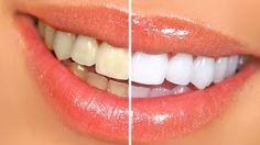 La beauté naturelle: Détartrage des dents maison : Recette grand mère à base du vinaigre blanc et du citron