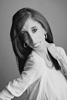 Lizzie Velasquez motivational speaker  Everyone needs to listen to this young…