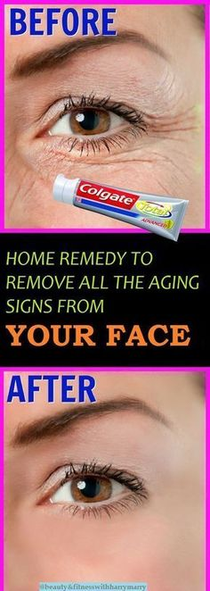Best Home Remedy That Will Remove All The Skin Aging Signs From Your Face Hey all.! Aging signs are natural. The can come with age. Skin...