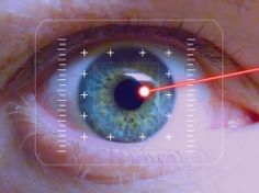 Things You Need to Know Before Getting LASIK Surgery