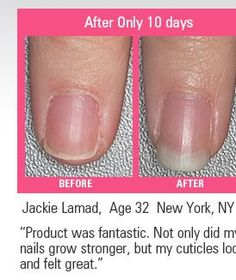 Real results from a nail growth treatment called GO Nails. Mine grow quickly but break easily! Nail Growth Treatment, Cute Nails, My Nails, Nail Tip Designs, Nail Repair, Nagel Hacks, Strong Nails, Hair Skin Nails, Manicure And Pedicure