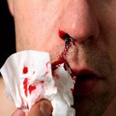 First Aid Tips for Nosebleeds