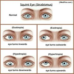 Strabismus (Misaligned eyes, Double vision)