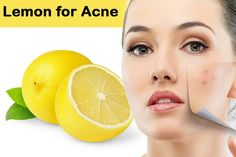 Lemon Juice remedy for acne. Lemon juice is great for skin, nevertheless, you might experience little inflammation. In that case you can clean your confront with cool water after 10 minutes of using