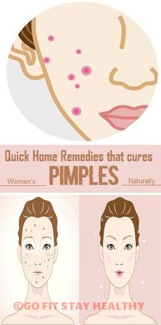 QUICK HOME REMEDIES THAT CURES WOMEN'S PIMPLES NATURALLY