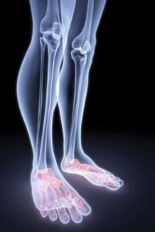 what causes burning feet. Unidad Especializada Ortopedia Traumatología PBX: 6923370 Bogotá, Colombia. Www.unidadortopedia.com
