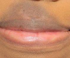 Dark Skin on Upper Lip