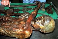 New tattoos found on Otzi the Iceman support prehistoric acupuncture theory