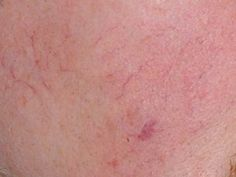 Vascular Lesion Treatment at Mayoral Dermatology in Coral Gables