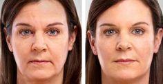 Frauen sind verrückt nach dieser Creme, da sie Dich innerhalb von nur 4 Tagen 10 Jahre jünger aussehen lässt. - 1k Rezepte