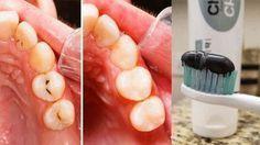 Las enfermedades bucales son sumamente delicadas y caras de tratar, por eso es que mundialmente los mejores doctores y odontólogos han estado investigando por crear.