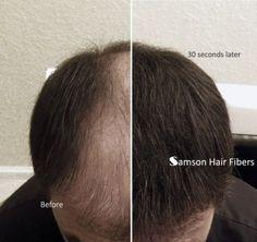 Hair-Thickening-Samson-Building-Fibre-Black-Dark-Brown-Blond-Hair-Loss-fiber Dark Brown, Black Dark, Hair Thickening, Hair Loss, Concealer, Blonde Hair, Hair Care, Fiber, Container