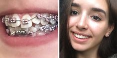 Teeth After Braces, Braces Before And After, Braces Smile, Cute Braces, Braces Off, Dental Braces, Braces Transformation, Wisdom Teeth Pulled, Lingual Braces