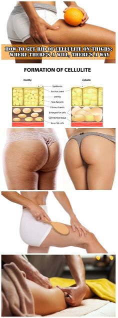 How to Get Rid of Cellulite on Thighs: Where There's a Will, There's a Way #beauty #skin #cellulite #tighs