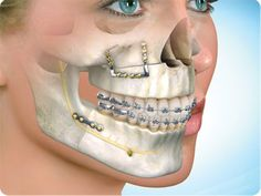 Maxillofacial Surgery in India, Maxillofacial Surgery in New Delhi.