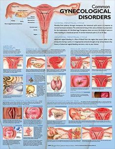 Cleanse vagin discharge iud vaginal
