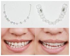 Many people often want braces to achieve the best results for straightening teeth. The biggest concern for people is the stigma attached to wearing braces. Ceramic Braces, Braces Cost, Teeth Whitening Procedure, Facial Bones, Diamond Teeth, Braces Colors, Teeth Straightening, Skin Gel