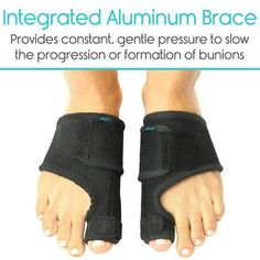 Bunion Splint by Vive [Pair] - Toe Straightener & Corrector Brace Pad for Hallux Valgus Pain Relief - Night Time Support for Men & Women (Black) Bunion Relief, Pain Relief, Turf Toe, Bunion Remedies, Tailors Bunion, Get Rid Of Bunions, Bunion Surgery, Hammer Toe, Foot Pain