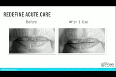 What lines are bothering you? Let R+F ACUTE CARE take care of those!  www.tarynfoti.myrandf.com