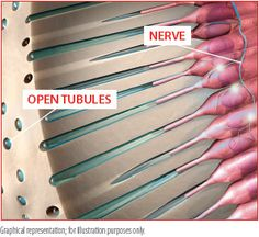 Sensitive teeth are primarily caused by gum recession. Gums recede for many reasons, like brushing too hard, age, and periodontal disease. When gums recede, small openings in the root of the tooth called dentine tubules are exposed and may be opened by acidic foods and drinks.2 These open tubules lead directly to the nerve of the tooth and can cause pain.