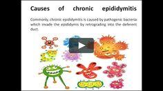 http://www.diureticspill.com/Medical_Use/Orchitis_Epididymitis/20141126/618.html  Chronic epididymitisis the chronic inflammation of epididymis. Commonly,…