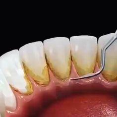 Dental Pictures, Dental Videos, Teeth Implants, Teeth Cleaning, Health Fitness, Instagram, Food, Friends, Orthodontics