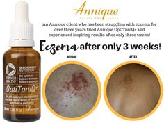 A leader in the South African health and beauty industry, Annique's products contain Rooibos - a trusted and scientifically proven remedy. Annique creates life-changing opportunities every day. Organic Supplements, Contact Form, Along The Way, Health And Beauty, Nutrition, Healthy, Tennis Elbow, Training, Gout