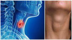 ung thư tuyến giáp - akchongungthu