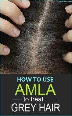 Are you irritated from your grey hair problem? Here are the 4 best ways to use amla powder for grey hair treatment. Grey Hair Home Remedies, Hair Remedies For Growth, Hair Growth, Grey Hair Natural Remedy, Remedy For White Hair, Natural Hair, Growth Oil, Stop Grey Hair, Prevent Grey Hair
