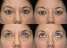 Information on upper and lower blepharoplasty - eyelid surgery with before and afters. Consider having eyelid surgery in Michigan. Eyelid Lift, Board Certified Plastic Surgeons, Eyelid Surgery, Liposuction, Rhinoplasty, Plastic Surgery, Photo Galleries, Detail