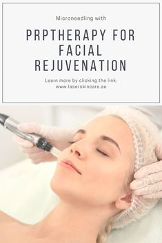 Facial rejuvenation was difficult; then came Microneedling with. Best Picture For Prp Facial before and after For Your Taste You are looking for somethin Facial Treatment, Skin Treatments, Laser Skin Rejuvenation, Facial Rejuvenation, Microneedling With Prp, Facial Before And After, Skin Tags Home Remedies, Vampire Facial, Tips