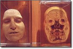 The Mutter Museum in Philadelphia, Pennsylvania contains over 20,000 medical oddities from the past 200 years that were originally designed to aid doctors and medical students. Description from pinterest.com. I searched for this on bing.com/images