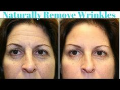 (2) 👉How To Remove Wrinkles Naturally : Amazing Way To Look Ten Years Younger - YouTube