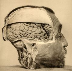 (January 19-23) Attempting to locate criminality in the brain: Photo of the dissected head of a convicted Argentinian criminal, c.1890