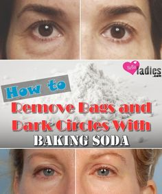 How to Remove Bags and Dark Circles With Baking Soda - Bella Ladies-You should stop buying expensive treatments for those dark circles of your eyes, especially if you have some baking soda in your kitchen! Dry Eyes Causes, Beauty Hacks For Teens, Dark Circles Under Eyes, Dark Around Eyes, Puffy Eyes, Makeup Tricks, Tips Belleza, Belleza Natural, Beauty Secrets