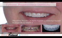 Zobacz, jak będzie wyglądał Twój uśmiech jeszcze przed leczeniem!  Digital Smile Design to nowa metoda cyfrowego projektowania uśmiechu, ułatwiająca Pacjentom podjęcie świadomej decyzji realizacji leczenia stomatologicznego swojego uśmiechu. Nie tylko w zakresie korekty estetycznej, ale i uzupełnienia braków zębowych czy leczenia protetycznego i ortodontycznego.  Dzięki temu ich uśmiech w końcu pozbawiony jest kompleksów, a dodatkowo funkcjonuje długie lata.