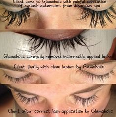 Bad lash extensions. Dont let this happen to you. Lashes should be ...
