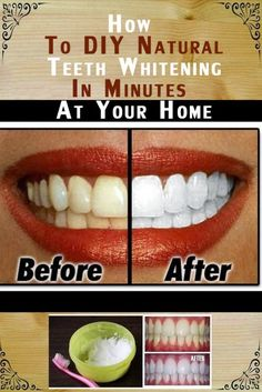 Natural Teeth Whitening Remedies