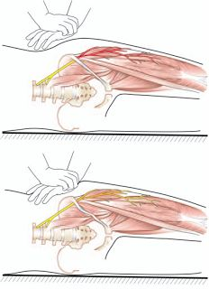 Sport Injuries and Wellness Ottawa: Meralgia Paresthetica: Finally There is A Test I Can Do On My Patient